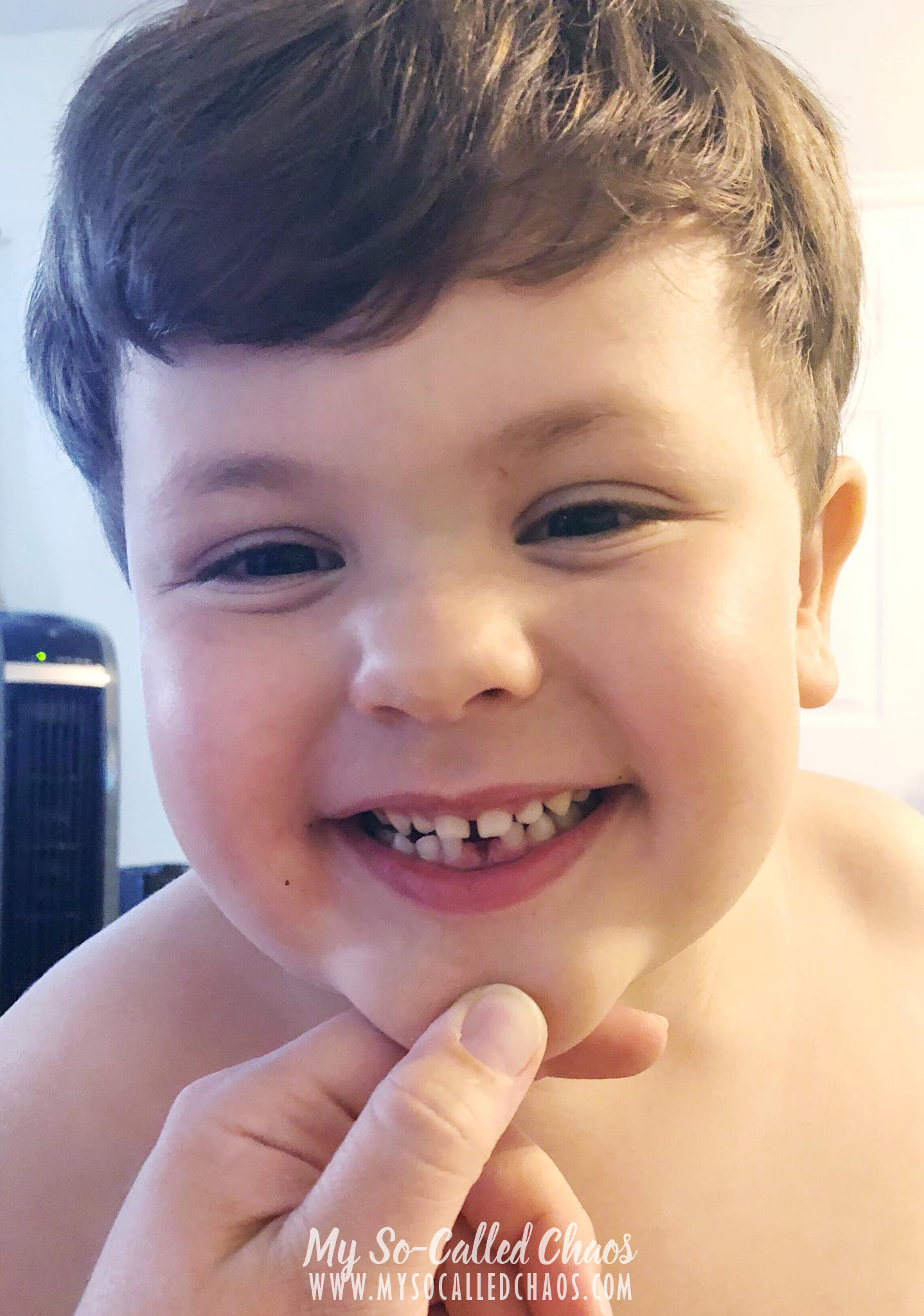 5 year old boy smiling and showing off that he lost his first tooth.
